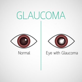 Auge mit und ohne Glaukom