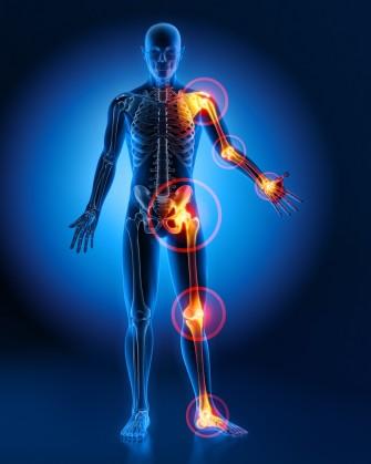 Behandlung Arthrose